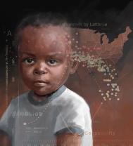 measles_fullsize-1